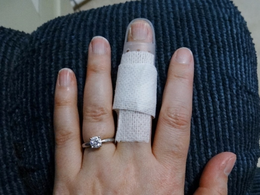 Splinted! Learning to cope with Mallet Finger | The Pathless